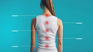 Gerincfájdalom: mozgásszervi vagy idegi eredetű panasz?