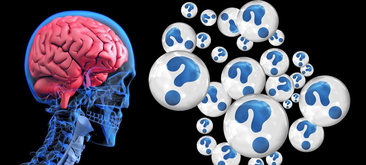 brain-2546101_1280.jpg