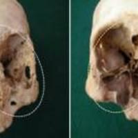 Rejtélyes kór pusztított ezer éve Chilében