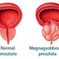 Helyes táplálkozással a prosztata betegségek ellen