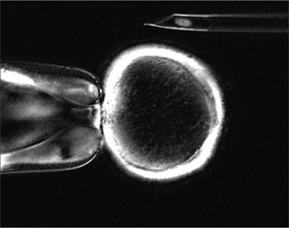 Klónozáshoz előkészítik a petesejtet a sejtmag eltávolításával (enukleáció)