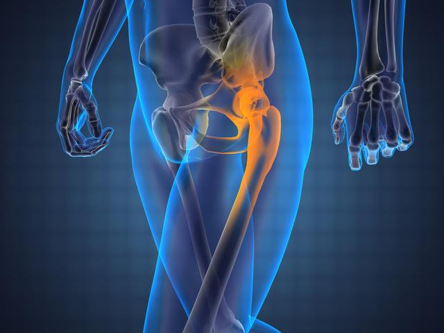 a fájdalom a jobb csípőízületre terjed ki