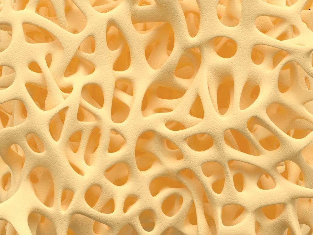 csontritkulás ízületből a legjobb üdülőhelyek az artrózis kezelésében
