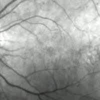 Mik azok a furcsa kis izék, amiket néha lebegni látunk a szemünkben?