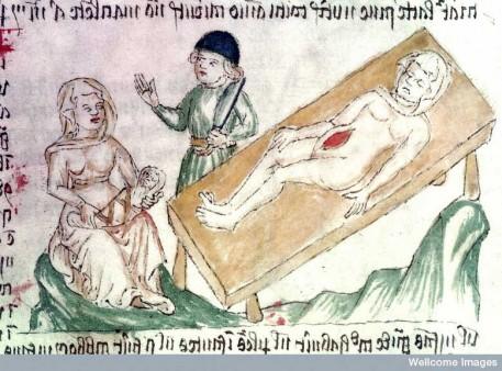 medieval-caesarean-section_en-457x338.jpg