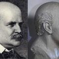 Semmelweis igazi arca