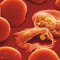 Jelen van-e még a malária Magyarországon?