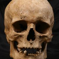 Kis színesek az embertanról: Nemi dimorfizmus, avagy ivari kétalakúság az emberi koponyán