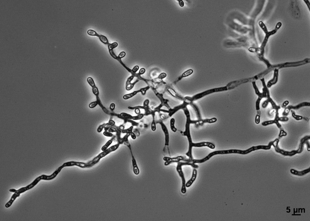 1009px-ophidiomyces_ophiodiicola.jpg