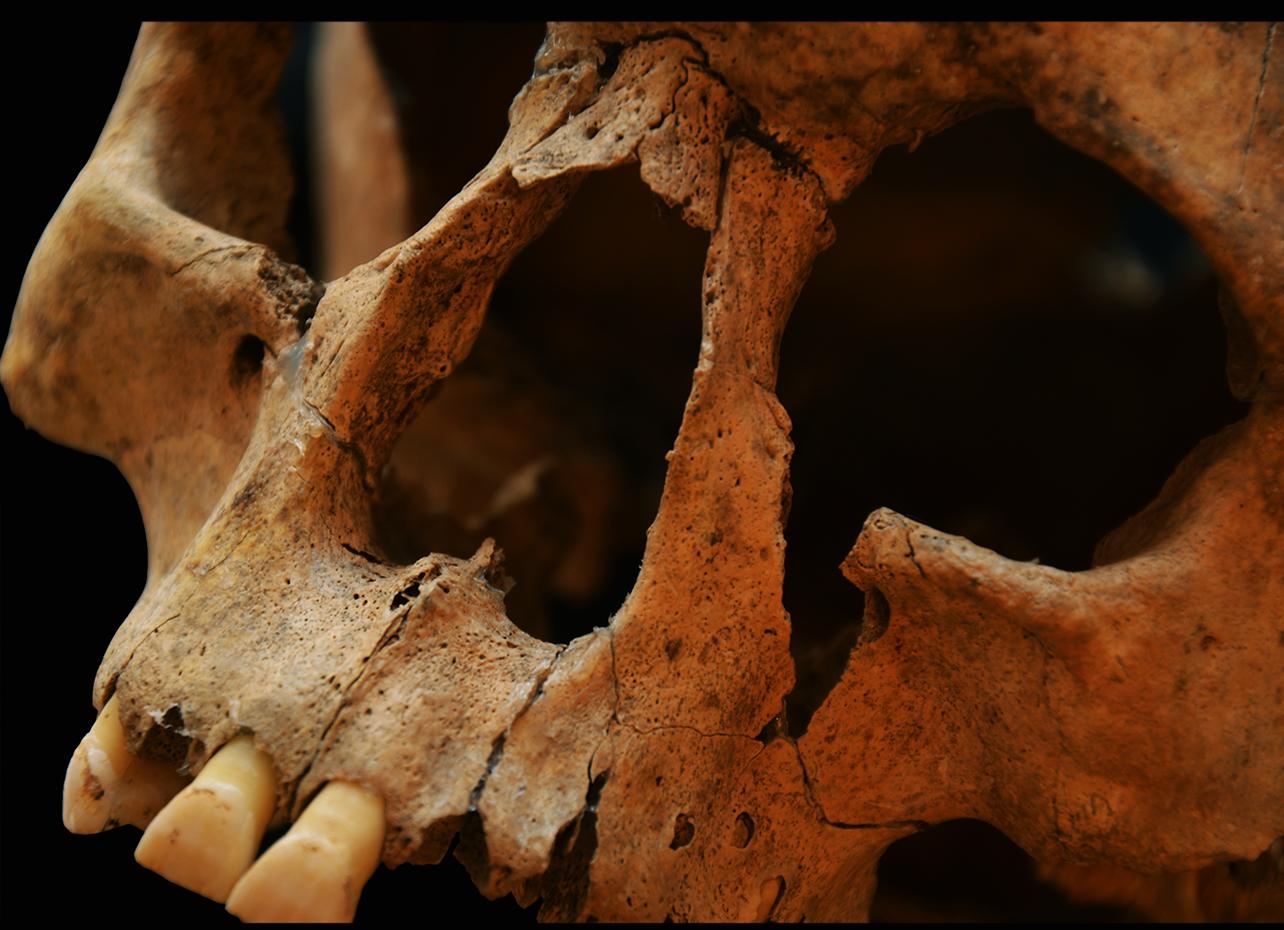 A betegségek nyomainak kutatása csontváz-maradványokon