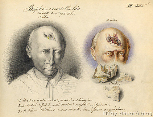 54 éves beteg szifiliszes csontsorvadásának rajzos illusztrációja