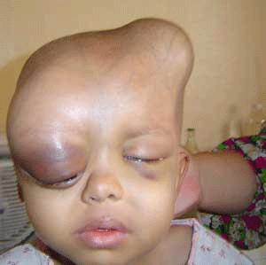 Deformált gyermek az iraki Falludzsában