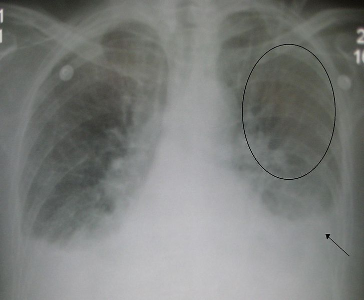 727px-Pulmonaryedema09.JPG