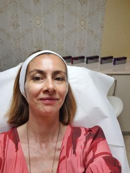 13 tévhit a hialuronsavas arcfeltöltésről - saját tapasztalat alapján!