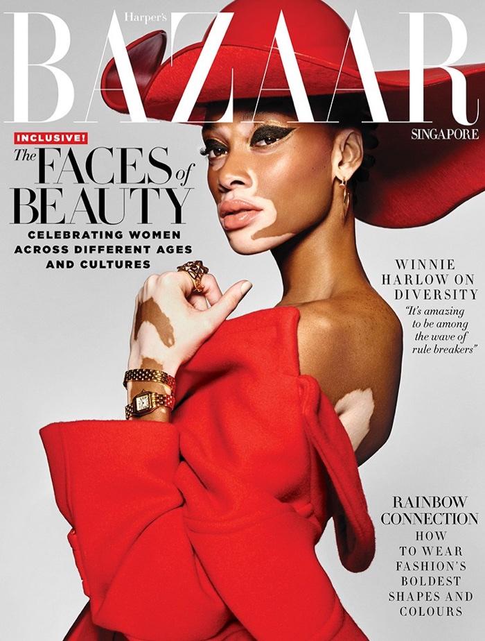 A vitiligós modell gyönyörű a címlapon: semmit nem retusáltak rajta
