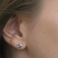 Hallássérülten sokszor hülyének vagy bunkónak néznek