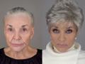 Tanulj a 80 évestől fiatalodni