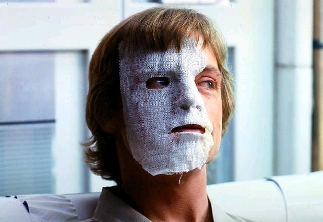 Hamill A Birodalom visszavág forgatását megelőzően súlyos autóbalesetben vesztette el kölyökképű vonásait. A baleset után úgy kellett összerakni az arcát. Emiatt került be a forgatókönyvbe Luke véres találkozása a wampa jéglénnyel.