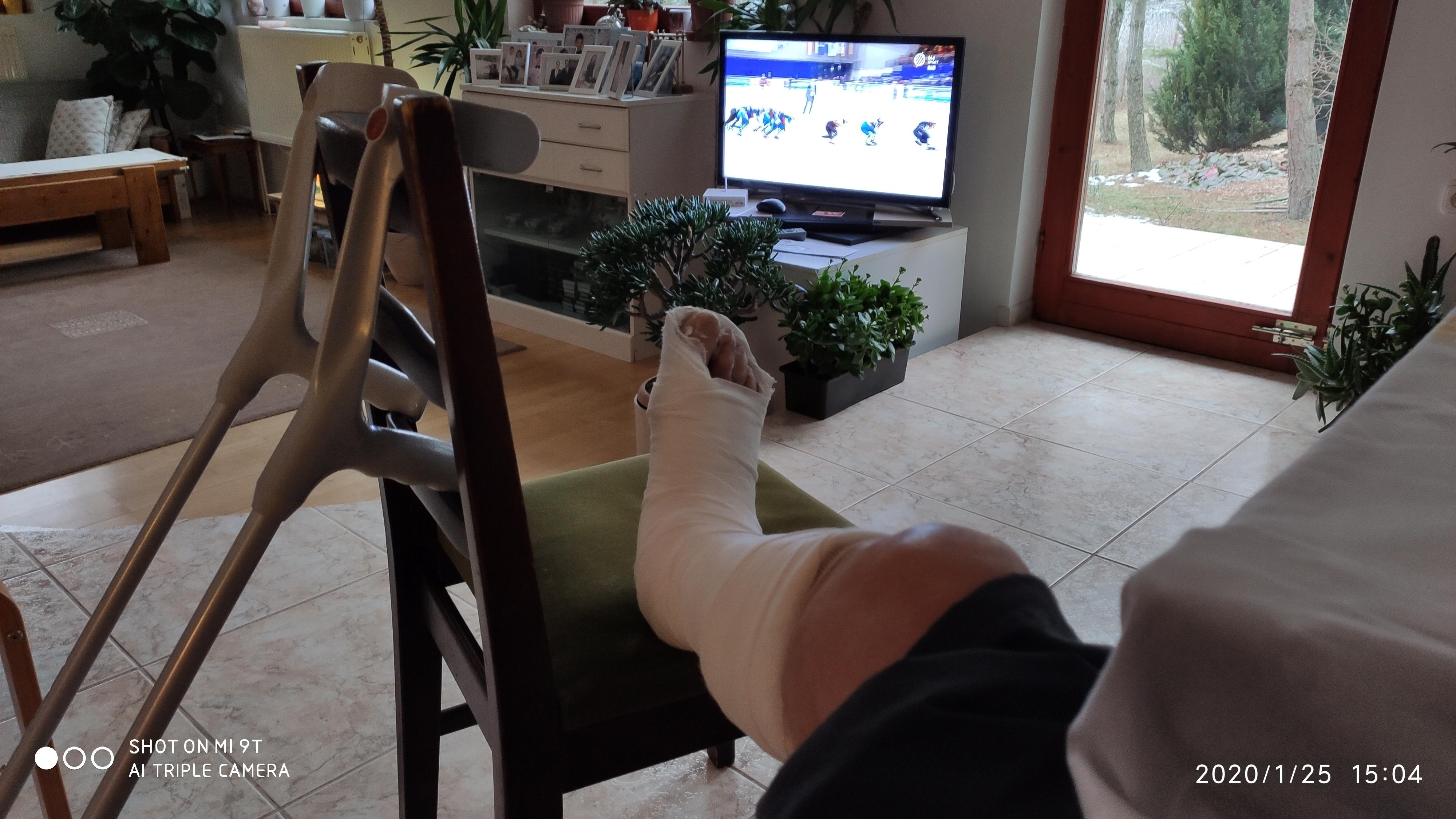 Zúzódásra tippeltem, de végül mégis bokatörés lett a téli motorozásból... (Érd, jan. 15-25.)