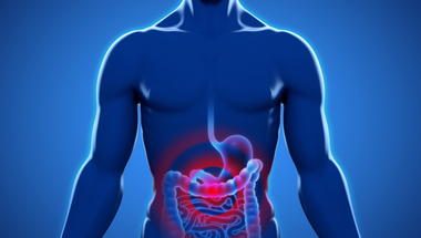 Mi is az IBS? Hogyan enyhíthetőek a tünetek?