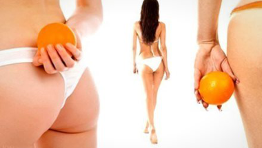 Ezeket kerüljük, hogy ne legyen narancsbőrünk!