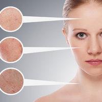 7 tipp 7 bőrproblémára Gyulladt, foltos, száraz vagy éppen zsíros?