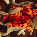 Koronavírus-korlátozások - mi várható?