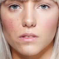 A megfelelő arcápolás, ami segíthet a pattanásos bőrön