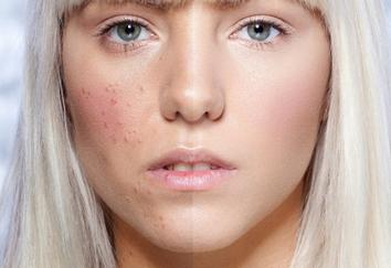 acne(alonsoler2)_m.jpg