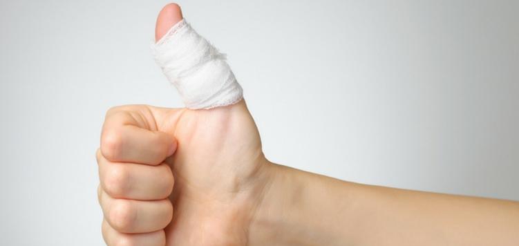 jammed-vs_-broken-finger-how-can-i-tell-.jpg