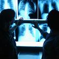 Megkésett diagnózis, hosszú várólisták a képalkotó diagnosztikában