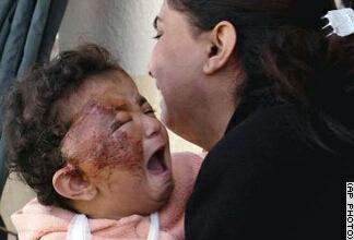 sebesült iraki gyerek