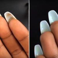 Így tisztítsd ki a piszkot a műköröm alól: csúnya fertőzést előzhetsz meg