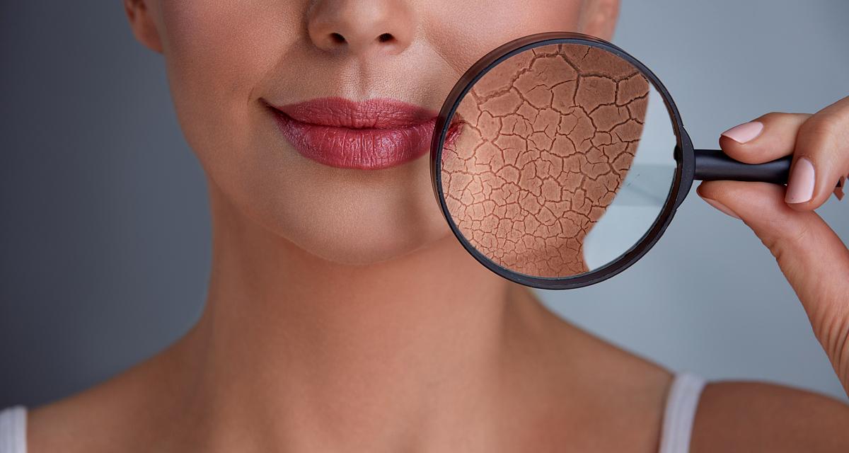 Ennyi arckrémet vihetsz fel egyszerre: fontos tanácsok a bőrgyógyásztól