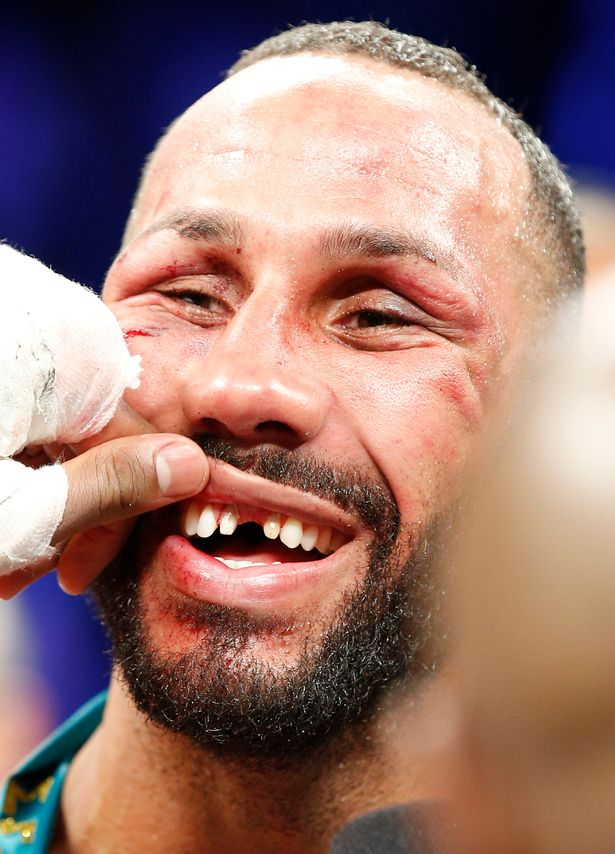 james-degale-reveals-missing-teeth-after-the-fight.jpg