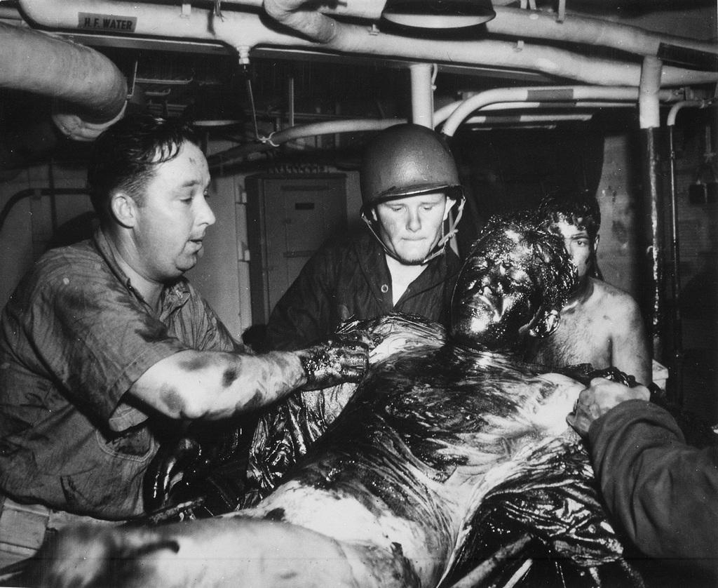 1944_aprilis_20_a_nemetek_altal_bombazott_uss_lansdale_olajjal_boritott_serult_matroza_az_uss_menges_fedelzeten_az_algeriai_oran_kozeleben.jpg