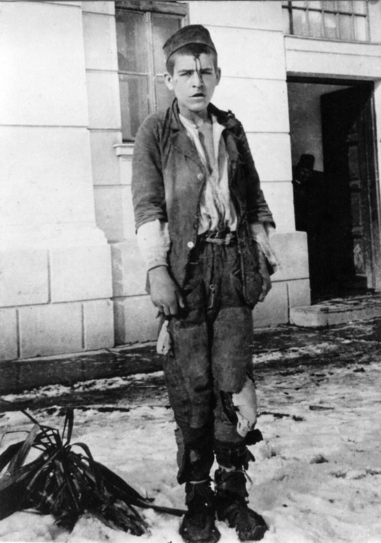 1943_a_nemetek_altal_elfogott_slavoljub_slava_kovic_fiatalkoru_partizan_homlokara_karcolt_otagu_csillaggal.jpg