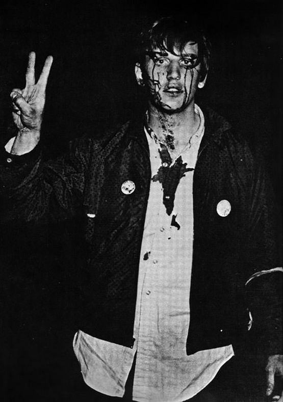 1968_aprilis_columbia_student_flashes_the_peace_sign_after_being_beaten_by_riot_police_at_an_antiwar_demonstration.jpg