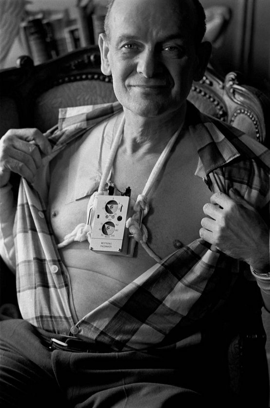 1960_a_man_wearing_an_external_battery-operated_heart_pacemaker_new_york.jpg