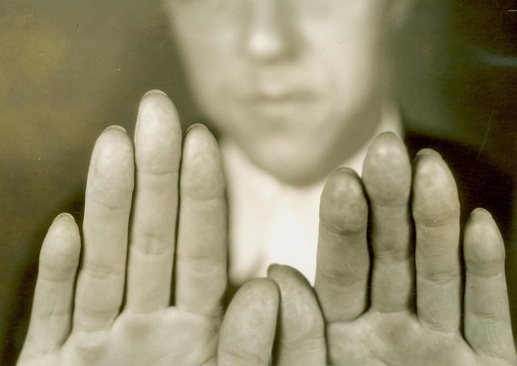 1934_depression_era_gangster_alvin_creepy_karpis_had_his_finger_prints_removed_to_help_evade_identification.jpg
