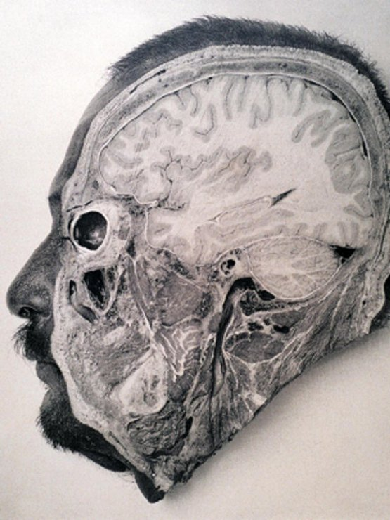 1904_the_dissected_head_of_an_executed_criminal_argentina.jpg