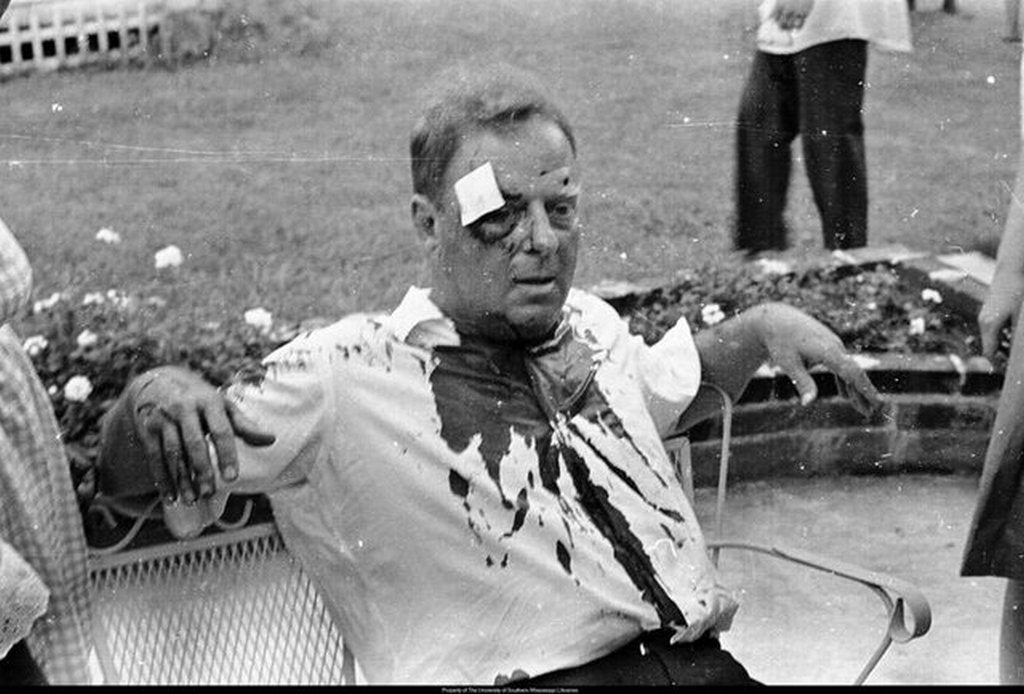 1964_rabbi_arthur_lelyveld_after_being_beaten_with_a_tire_iron_by_segregationists_in_hattiesburg_mississippi.jpg
