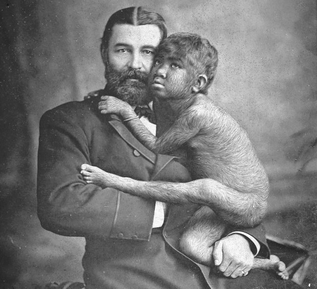 1880-as_evek_william_leonard_hunt_aka_the_great_farini_a_famous_showman_in_victorian_england_posing_with_krao_a_girl_from_laos_krao_was_touted_as_the_missing_link_in_the_story_of_evolution.jpg