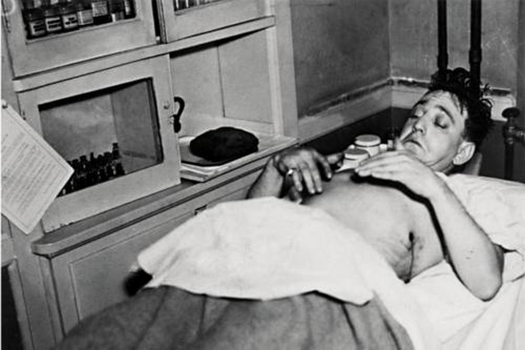 1935_oktober_23_new_york_city_gangster_dutch_schultz_examining_his_wounds_shortly_before_dying.jpg