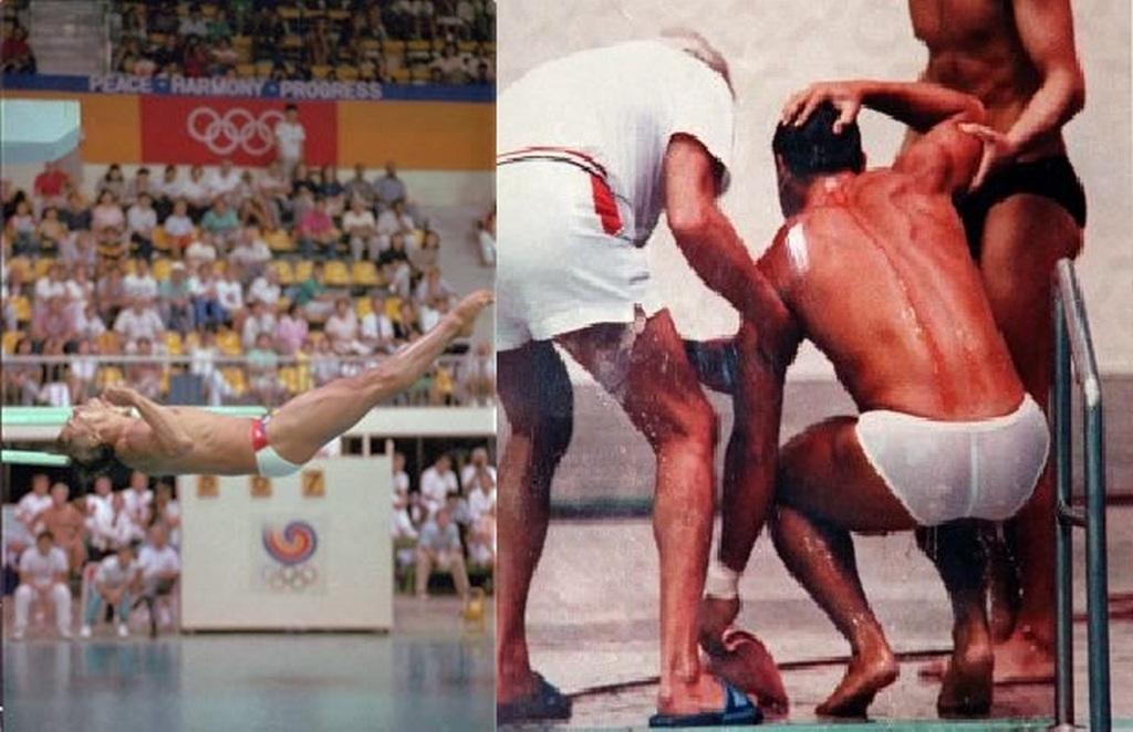 1988_greg_louganis_head_injury_on_seoul_olympics.jpg
