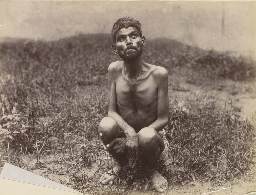 1894_dina_sanichar_the_feral_boy_found_after_being_raised_by_wolves_and_was_the_inspiration_for_the_jungle_book.png