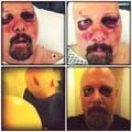 Elhagyta a kórházat a Pro-Pain frontembere, Gary Meskil