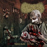 Paediatrician - Harlequin Fetus (Sirius Records, 2019)