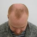 A végeredmény - hajbeültetés után 1 évvel