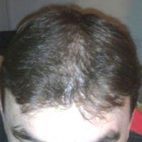 11 hónap után